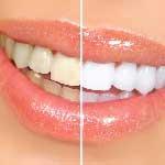 Dental-Bleaching---Dentistry-in-Iran.jpg