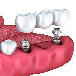 dental crown - dentistry in Iran