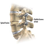 Orthopedics in Iran