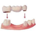 dental bridges Dentistry in Iran