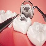 dental-fillings-Dentistry-in-Iran