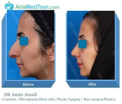 nose surgery in Iran - DR Amali